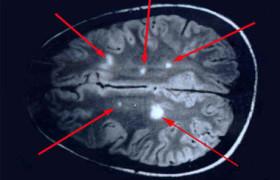 Продвинуться в лечении склероза могут помочь ранее неизвестные клетки