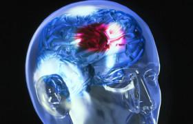Причиной инсульта может стать… шум бытовых приборов