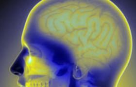 Окаменение мозга признали осложнением целиакии