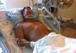 Трансплантация по-шведски: изъятие органов заживо