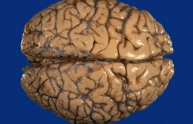 Кофе помогает бороться с болезнью Альцгеймера