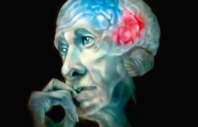 Описана невосприимчивость к болезни Альцгеймера