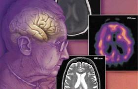 Исследователи нашли ген, нейтрализующий эффекты деменции