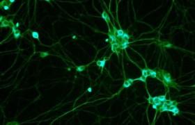 Стволовые клетки восстанавливают мозг