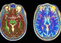 МРТ помогает определить болезнь Паркинсона