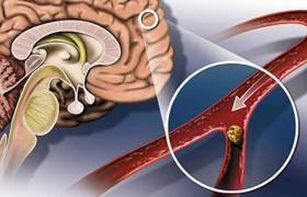 Какие начальные проявления недостаточности кровоснабжения головного мозга