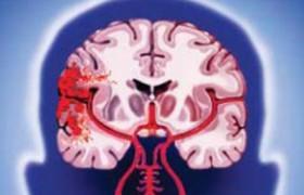 Развитие геморрагического инсульта на фоне приема антидепрессантов класса СИОЗР связано с ухудшением исхода заболевания