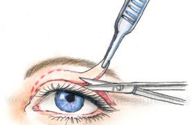 Операции на веках будут проводить для лечения от мигрени