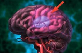 У детей, страдающих серповидно-клеточной анемией, регулярные переливания донорской крови значительно снижают риск развития инсультов