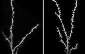 Аутизм предложили лечить устранением лишних нейронных связей