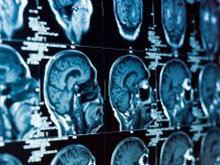 Под эпилептическим приступом может скрываться острая реакция на чувство тревоги