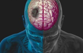 Терапию инсульта стволовыми клетками впервые испытали на людях