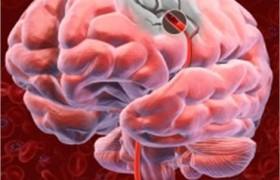 По сравнению с преходящей мерцательной аритмией постоянная форма этого заболевания связана с более высоким риском развития ишемического инсульта