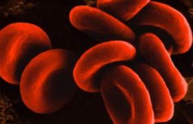 Люди с четвертой группой крови в старости чаще подвержены потере памяти