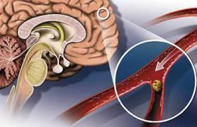 Прием статинов больными с геморрагическим инсультом в период госпитализации связан с улучшением показателей выживаемости