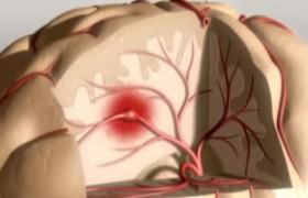 Ученые разработали новый способ восстановления мозга после инсульта