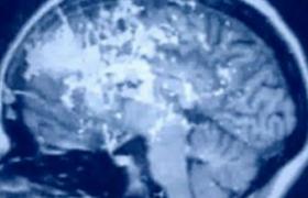 Препарат от рассеянного склероза прошел первую стадию испытаний