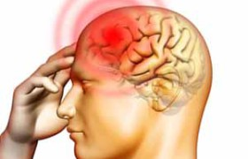 Начались клинические исследования нового класса препаратов от мигрени