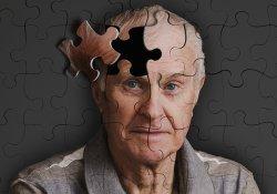 Ученые раскрыли секрет ухудшения памяти у больных после общего наркоза