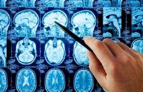 Ученые нашли зону мозга, ответственную за воображение
