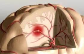 Бессимптомый атеросклероз связали со снижением умственных способностей