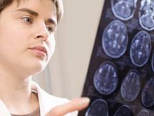 Ученые выяснили, как защитить мозг от последствий инсульта