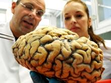 Найдены новые различия в мозге у мужчин и женщин