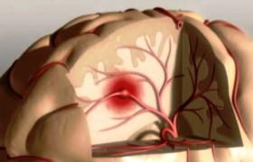 Прием некоторых препаратов группы НПВП связан с риском развития несмертельного инсульта