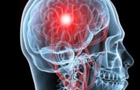 Эндоваскулярное вмешательство оказалось эффективно при остром ишемическом инсульте