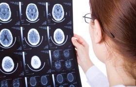 Неврологи: инфантильность полезна для мозга