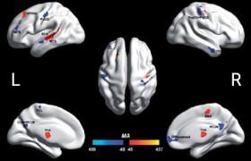Впервые выделены особенности функционирования аутистического мозга