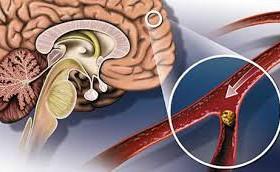 Атеросклероз: лечение «от знахаря»