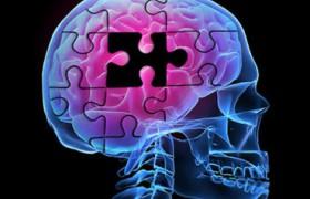 Ученые разрабатывают новое средство от болезни Альцгеймера