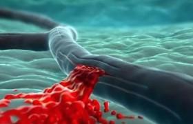 Медики выяснили, что инсульт легче предотвратить у мужчин, чем у женщин