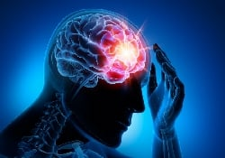 Можно ли лечить кровоизлияние в мозг с помощью угарного газа?