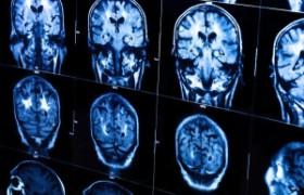 К вечеру объем мозга уменьшается – ученые
