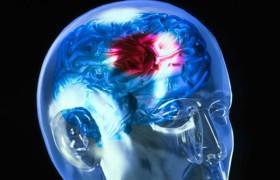 8 тревожных симптомов будущего инсульта