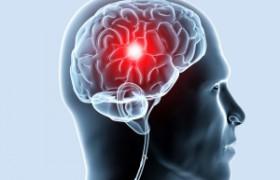 Инсульт ускоряет старение мозга – ученые