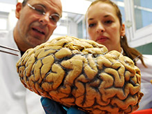 Инсульт значительно ускоряет процесс старения мозга