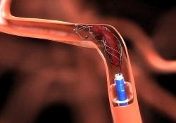 Невропатологи активно выступают за внедрение нового метода лечения инсультов