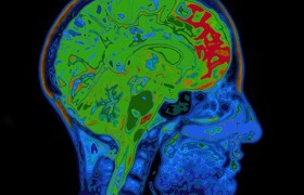 Найден белок, связанный с ухудшением памяти