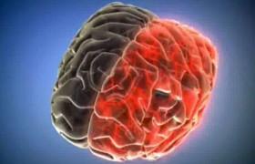 Доказана эффективность хирургического метода лечения частых мигренозных болей у больных подросткового возраста