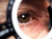 Мозг способен контролировать процесс развития глаукомы, показало исследование