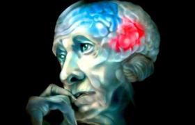 Большие дозы витамина Е тормозят развитие болезни Альцгеймера