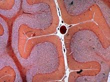 Ученые обнаружили интересную особенность нервных клеток