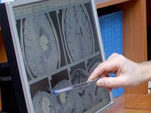 Сканирование мозга покажет, насколько умен человек