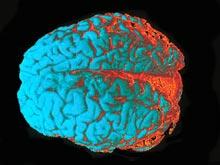Стимуляция мозга способна изменить убеждения