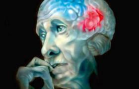 Ученые в шаге от создания вакцины против болезни Альцгеймера