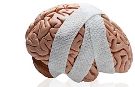 Обнаружены фактические изменения в рабочей памяти после травмы мозга