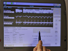 Кардиостимуляторы способны снизить риск инсульта